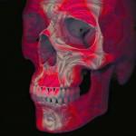 Cranio Rosso